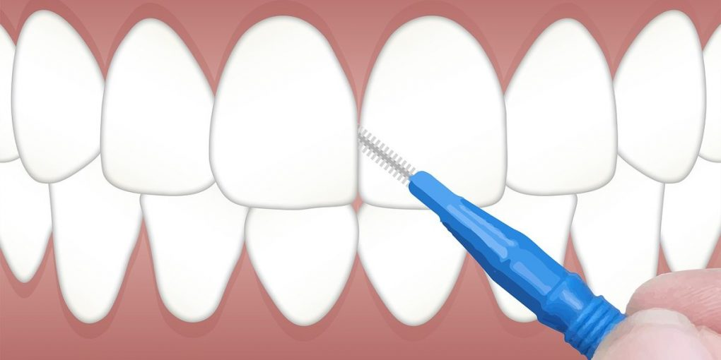 Anwendung interdental Bürste Illustration