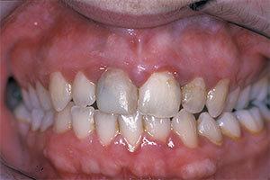 Parodontitis im Frühstadium - Quelle: efp.org